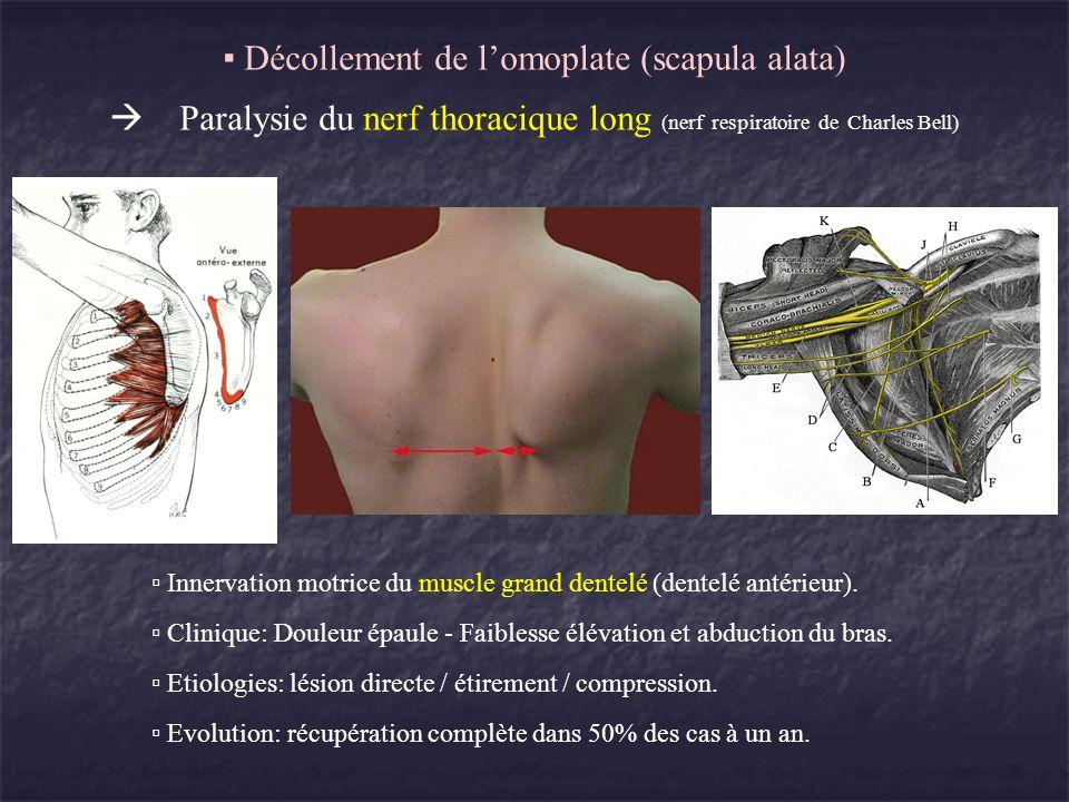 Décollement de lomoplate (scapula alata) Paralysie du nerf thoracique long (nerf respiratoire de Charles Bell) Innervation motrice du muscle grand den