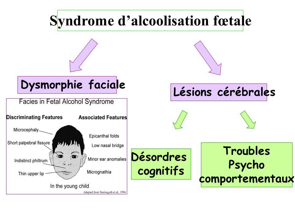 Syndrome dalcoolisation fœtale Dysmorphie faciale Lésions cérébrales Désordres cognitifs Troubles Psycho comportementaux