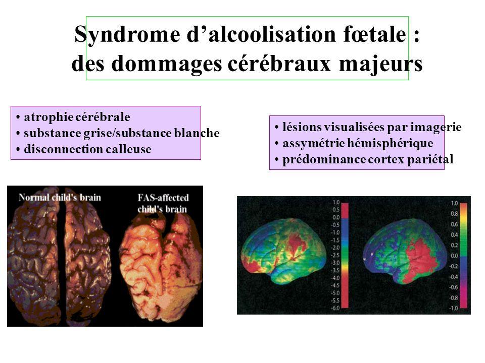 Syndrome dalcoolisation fœtale : des dommages cérébraux majeurs atrophie cérébrale substance grise/substance blanche disconnection calleuse lésions vi