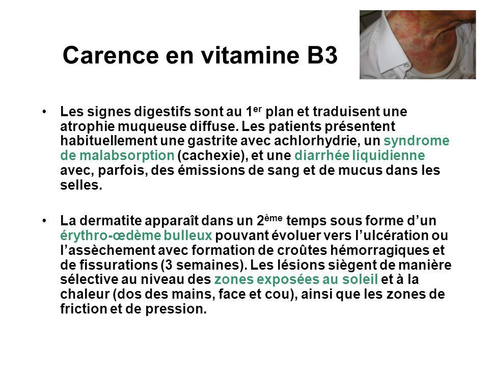 Carence en vitamine B3 Les signes digestifs sont au 1 er plan et traduisent une atrophie muqueuse diffuse.