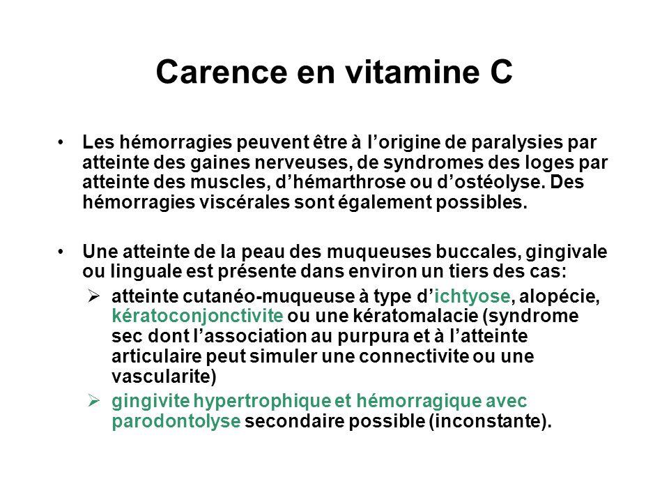 Carence en vitamine C Les hémorragies peuvent être à lorigine de paralysies par atteinte des gaines nerveuses, de syndromes des loges par atteinte des muscles, dhémarthrose ou dostéolyse.