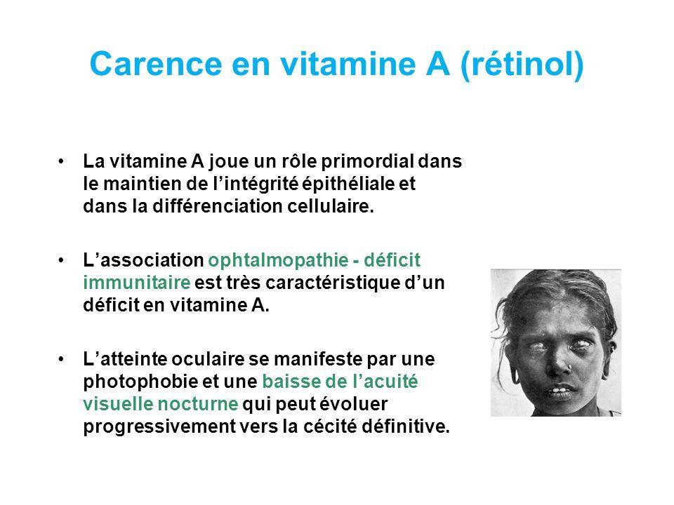Carence en vitamine A Les signes physiques sont essentiellement une xérophtalmie (Diag.