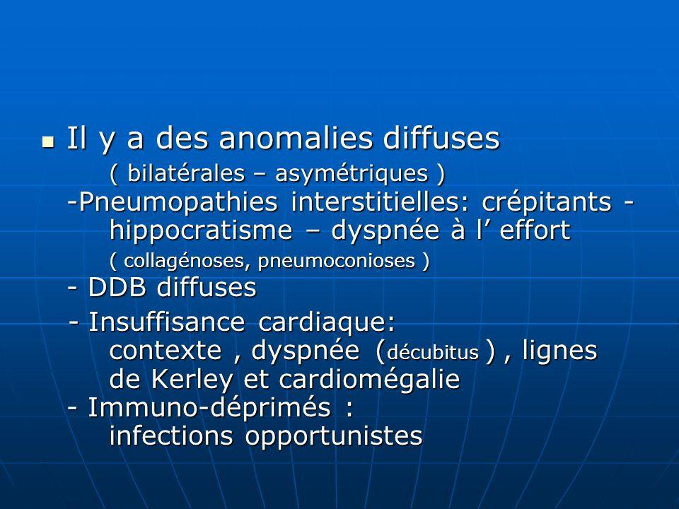 Il y a des anomalies diffuses ( bilatérales – asymétriques ) -Pneumopathies interstitielles: crépitants - hippocratisme – dyspnée à l effort ( collagé