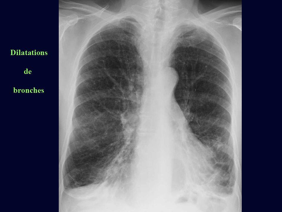 Dilatations de bronches