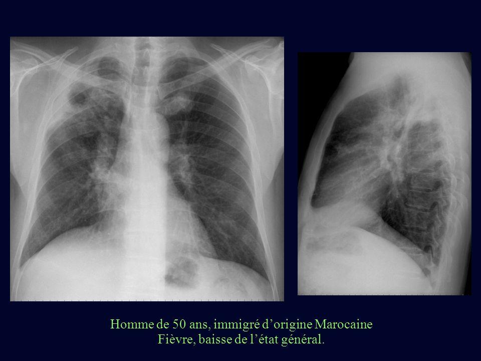 Homme de 50 ans, immigré dorigine Marocaine Fièvre, baisse de létat général.