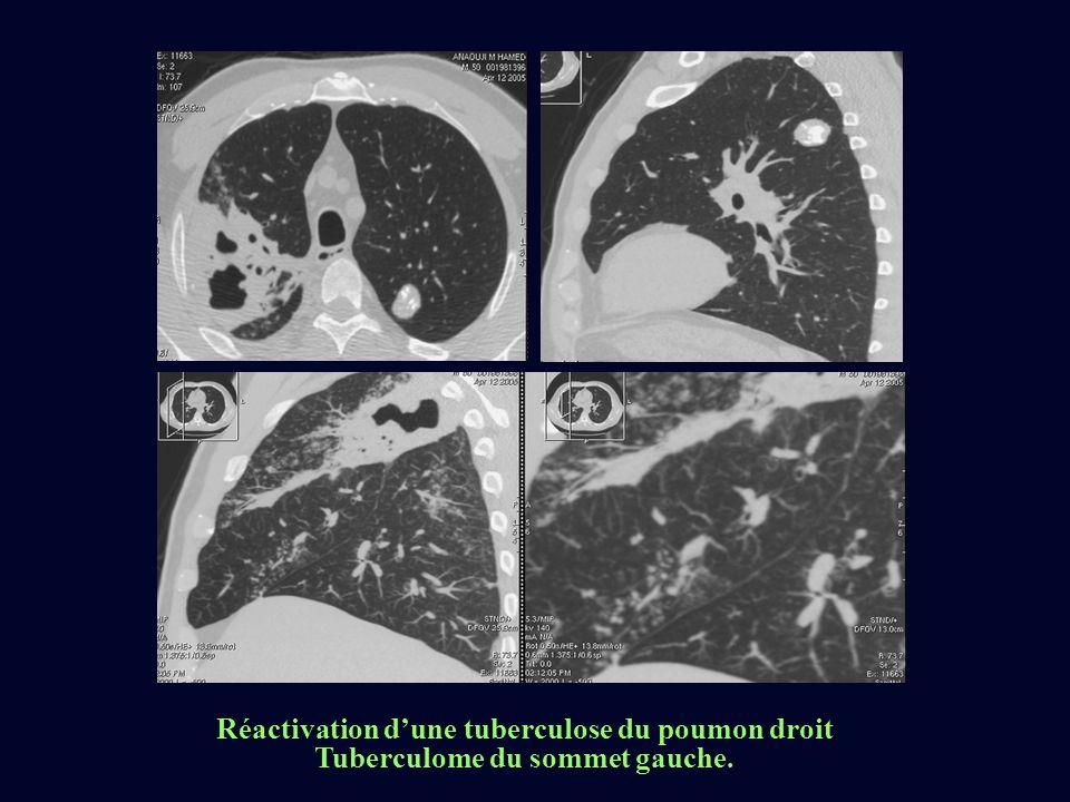 Réactivation dune tuberculose du poumon droit Tuberculome du sommet gauche.