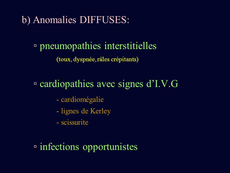 b) Anomalies DIFFUSES: pneumopathies interstitielles (toux, dyspnée, râles crépitants) cardiopathies avec signes dI.V.G - cardiomégalie - lignes de Ke