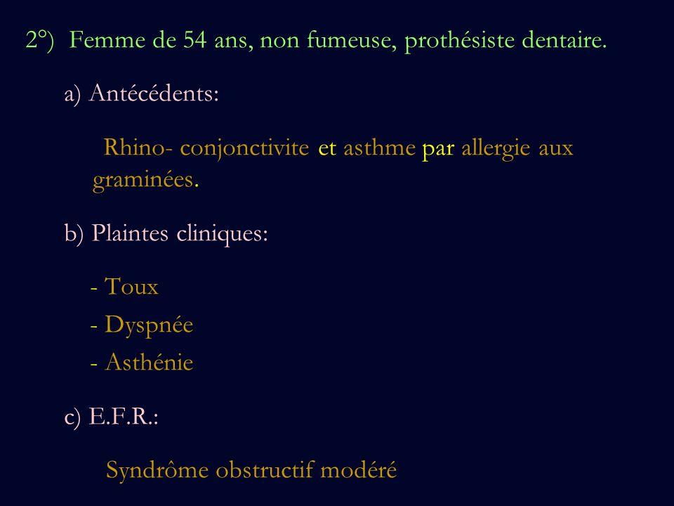 2°) Femme de 54 ans, non fumeuse, prothésiste dentaire. a) Antécédents: Rhino- conjonctivite et asthme par allergie aux graminées. b) Plaintes cliniqu