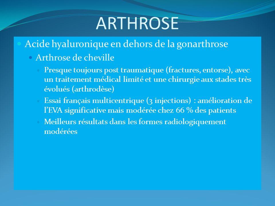 ARTHROSE Acide hyaluronique en dehors de la gonarthrose Arthrose de cheville Presque toujours post traumatique (fractures, entorse), avec un traitemen