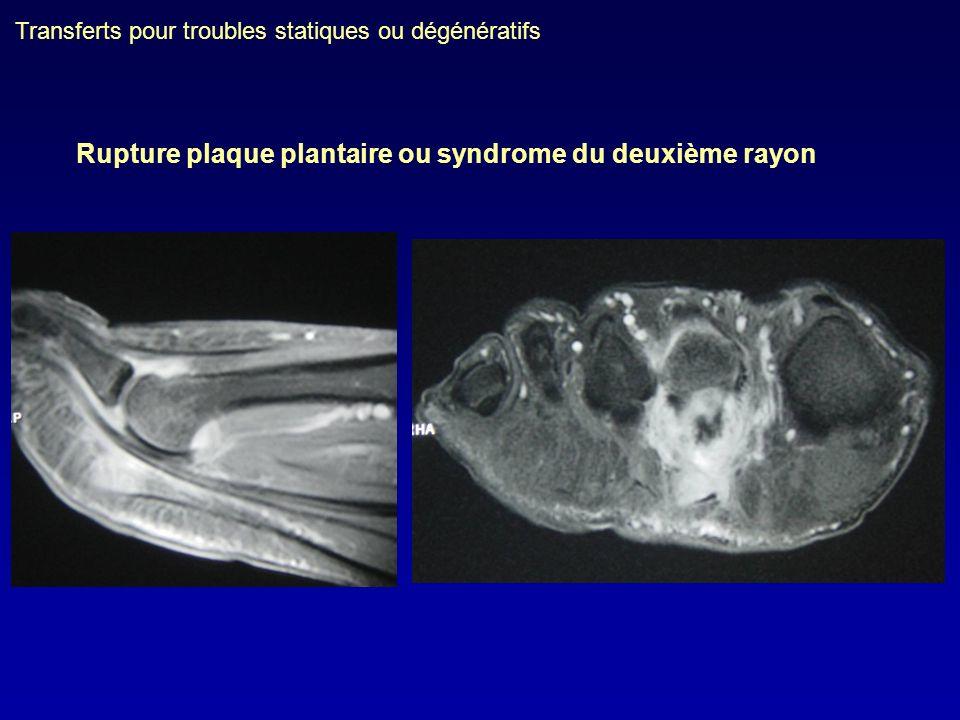 Transferts pour troubles statiques ou dégénératifs Rupture plaque plantaire ou syndrome du deuxième rayon