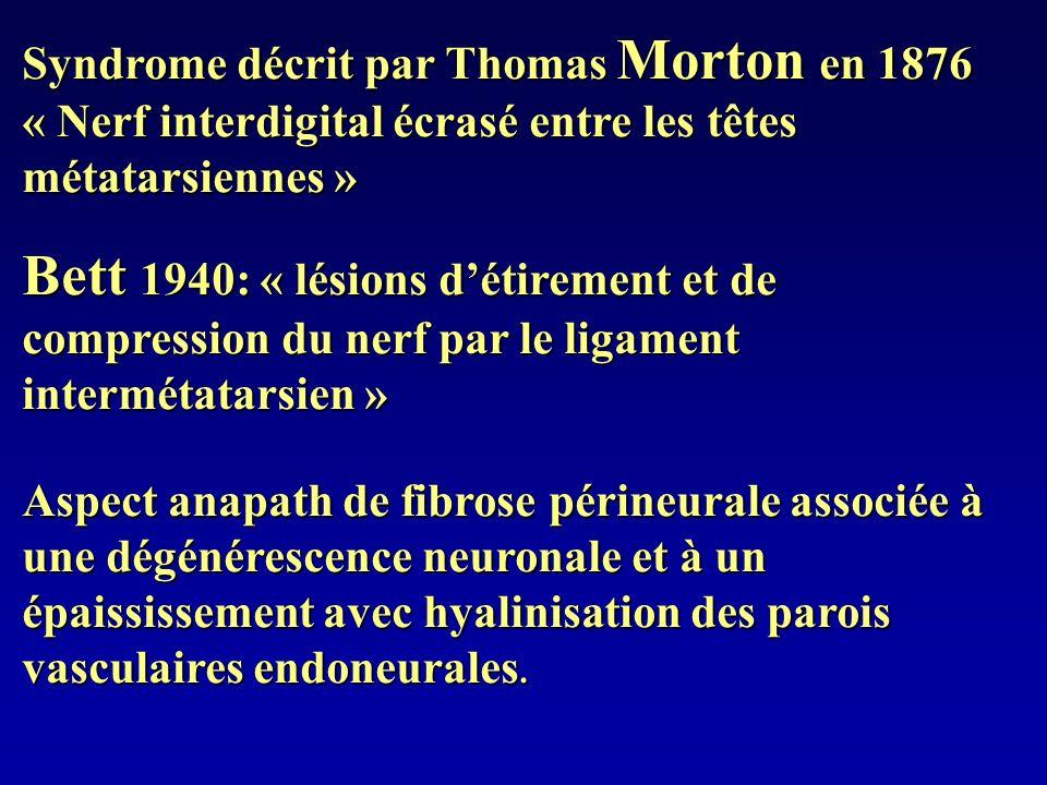 Syndrome décrit par Thomas Morton en 1876 « Nerf interdigital écrasé entre les têtes métatarsiennes » Bett 1940: « lésions détirement et de compressio