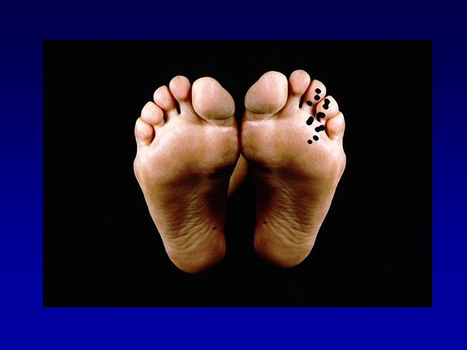 Examen clinique (Mann foot & ankle 1983) douleur à la pression plantaire95% irradiation aux orteils46% masse palpable12% hypoesthésie3% élargissement intermétatarsien3%