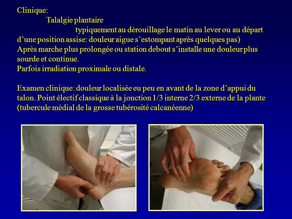 Clinique: Talalgie plantaire typiquement au dérouillage le matin au lever ou au départ dune position assise: douleur aigue sestompant après quelques p