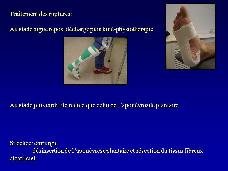Traitement des ruptures: Au stade aigue repos, décharge puis kiné-physiothérapie Au stade plus tardif: le même que celui de laponévrosite plantaire Si