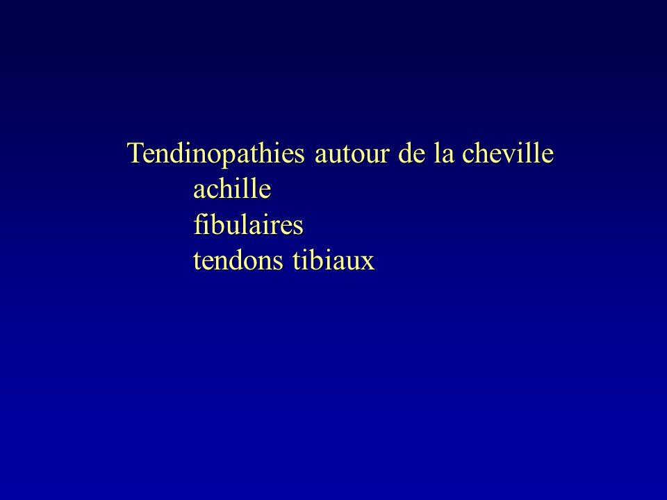 Tendinopathies autour de la cheville achillefibulaires tendons tibiaux