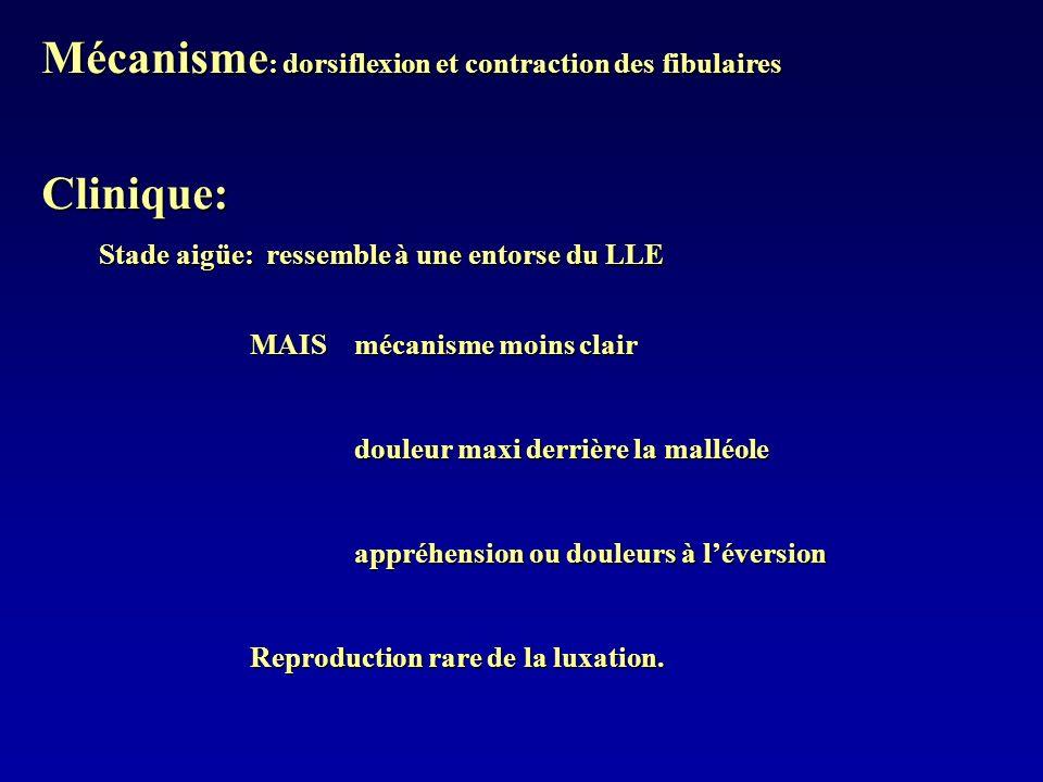 Mécanisme : dorsiflexion et contraction des fibulaires Clinique: Stade aigüe: ressemble à une entorse du LLE Stade aigüe: ressemble à une entorse du L