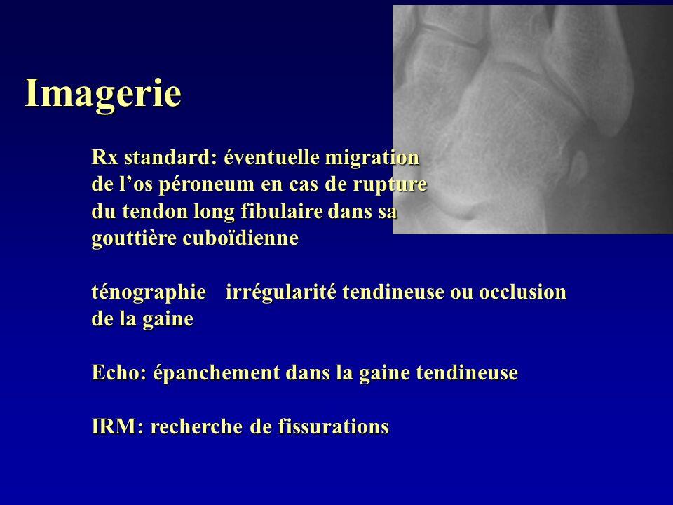 Imagerie Rx standard: éventuelle migration de los péroneum en cas de rupture du tendon long fibulaire dans sa gouttière cuboïdienne ténographie irrégu