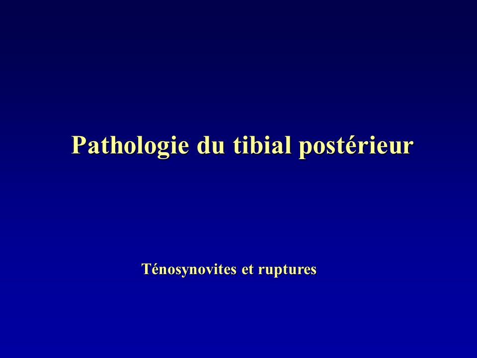 Pathologie du tibial postérieur Ténosynovites et ruptures