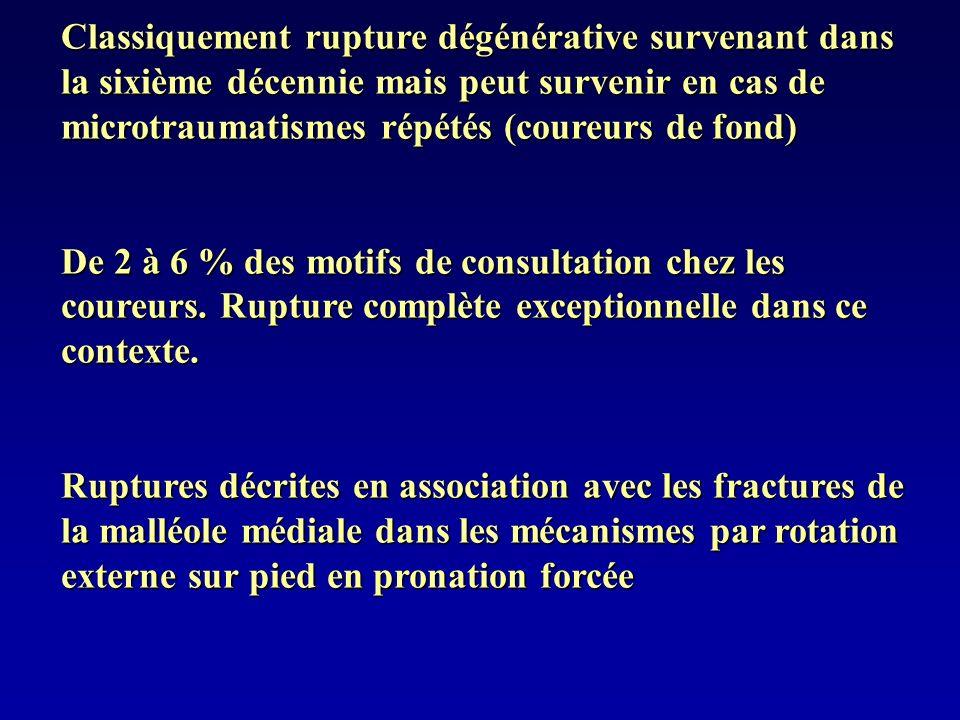 Classiquement rupture dégénérative survenant dans la sixième décennie mais peut survenir en cas de microtraumatismes répétés (coureurs de fond) De 2 à