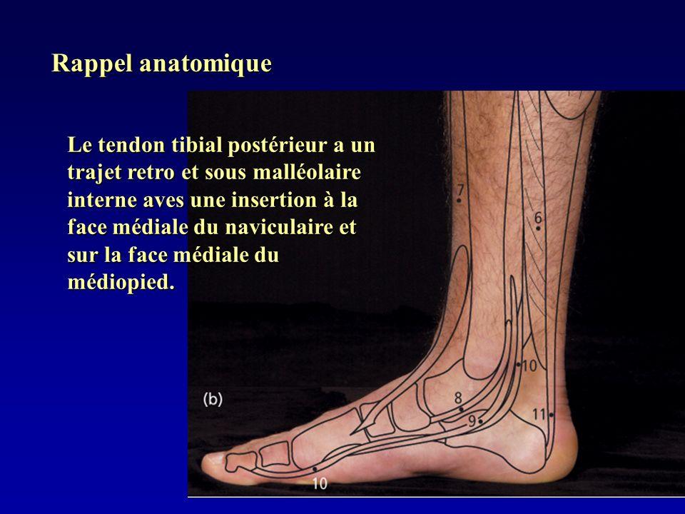 Rappel anatomique Le tendon tibial postérieur a un trajet retro et sous malléolaire interne aves une insertion à la face médiale du naviculaire et sur
