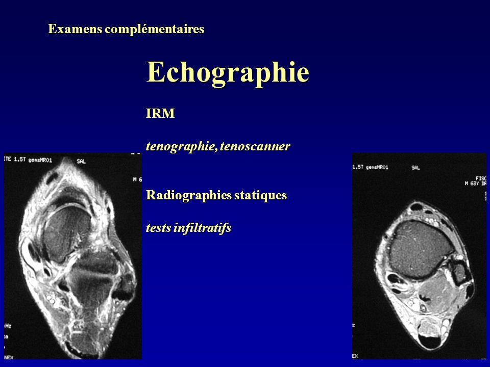 Examens complémentaires EchographieIRM tenographie, tenoscanner Radiographies statiques tests infiltratifs