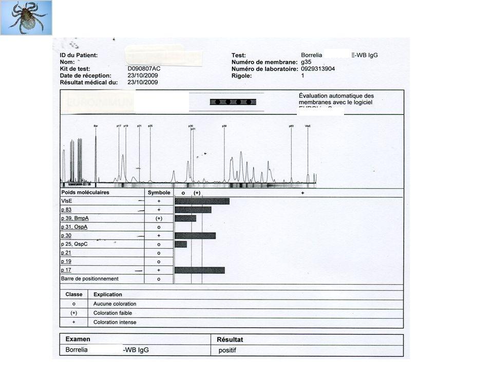 Sérodiagnostic au stade dérythème migrant sérologie na pas dindication à ce stade IgM (anti-OspC, 21 kDa et anti-Fla, 41 kDa) napparaissent pas avant 3 semaines si IgG positives à ce stade signent cicatrice ancienne ou réinfection (rare) IgG apparaissent plusieurs semaines après IgM (IgG anti-OspC, Fla, VlsE, 83/100, 66, 50, 32 et 18 kDa) pour séro-évolution 6 à 8 semaines nécessaires donc diagnostic clinique
