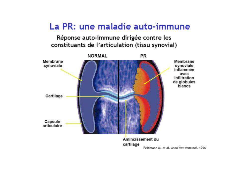 Physiopathologie : 3 phases Phase de déclenchement de la maladie : Différents facteurs responsables de linitiation de la PR : hormonaux, génétiques et environnementaux Phase dinflammation de la membrane synoviale : Lactivité cellulaire au sein de la synoviale (macrophages et lymphocytes T activés ) est responsable de la libération en excès de cytokines pro-inflammatoires notamment TNFalpha,interleukines IL1 et IL6 à lorigine des lésions ostéocartilagineuses Phase de destruction ostéo-articulaire Secondaire à la prolifération pseudotumorale et à laction des cytokines (hyperactivité des ostéoclastes fortement influencée par le TNFalpha)