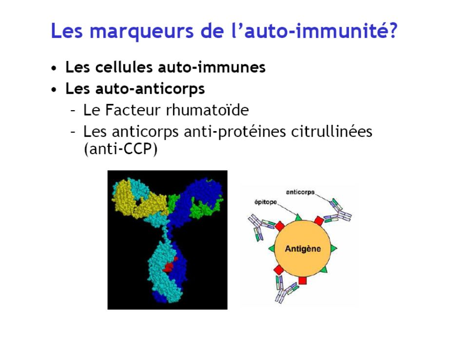 PROTEINE Citrullination ArginineCitrulline Réponse auto-immune Anticorps anti-CCP Lantigène est une protéine de lorganisme qui a subi une transformation : la citrullination H N O NH NH 2 O H N O NH NH 2 H 2 N+ + NH 3 + H + Peptidylarginine désiminase Ca 2+ + H 2 O
