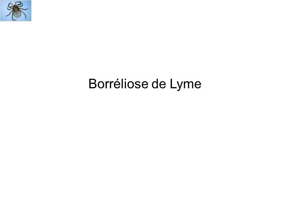 Place des méthodes biologiques dans le diagnostic des différentes manifestations de la borréliose de Lyme .