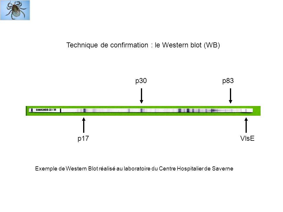 VlsE Exemple de Western Blot réalisé au laboratoire du Centre Hospitalier de Saverne Technique de confirmation : le Western blot (WB) p17 p83p30