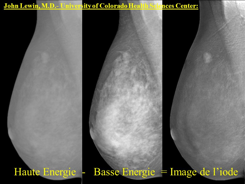 John Lewin, M.D.- University of Colorado Health Sciences Center: Haute Energie - Basse Energie = Image de liode