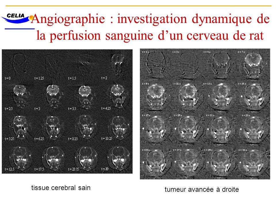 Angiographie : investigation dynamique de la perfusion sanguine dun cerveau de rat tissue cerebral sain tumeur avancée à droite