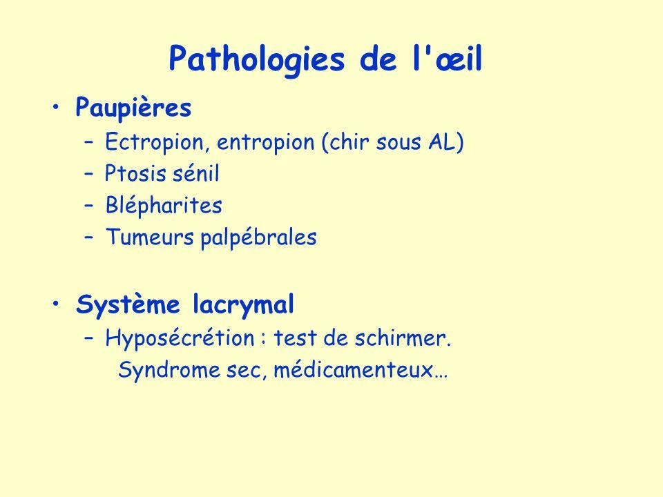 Cristallin –Presbytie : baisse de laccommodation –Cataracte : baisse de la transparence Ttt : chirurgical (implant) Glaucome chronique –Hypertonie oculaire (compression du nerf optique) –Scotomes paracentraux, amputations du champ visuel, cécité –Traitement : Médical : collyres (myosis), chirurgical (fistule)