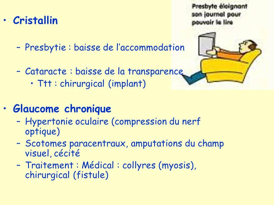 Cristallin –Presbytie : baisse de laccommodation –Cataracte : baisse de la transparence Ttt : chirurgical (implant) Glaucome chronique –Hypertonie ocu