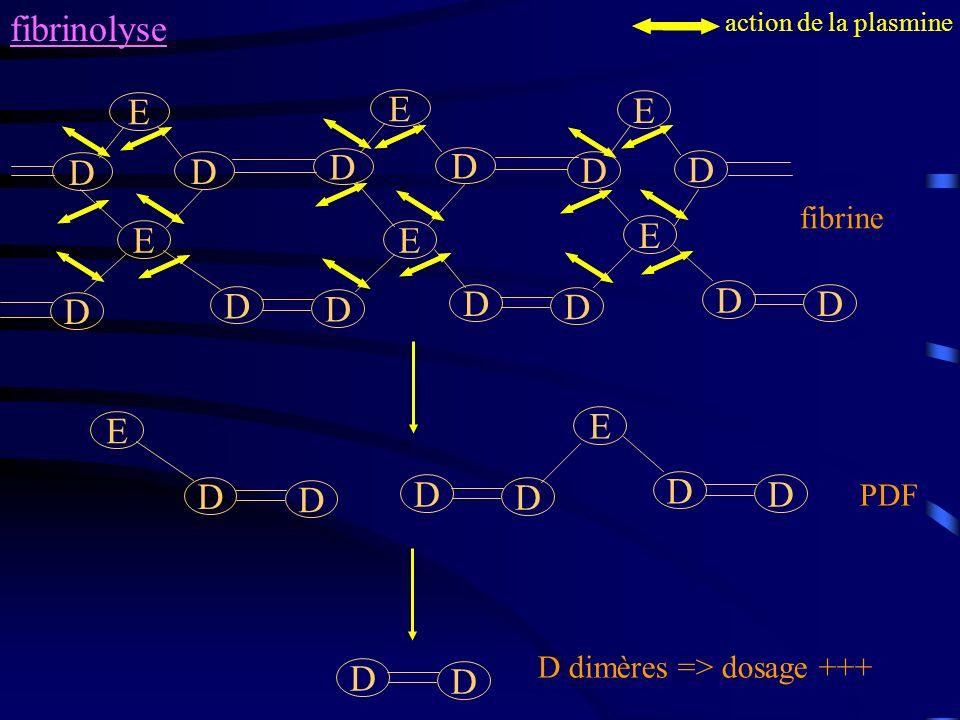 fibrinolyse fibrine E D D E D D E D D EE D D D E D D D D action de la plasmine E D D E D D D D PDF D D D dimères => dosage +++