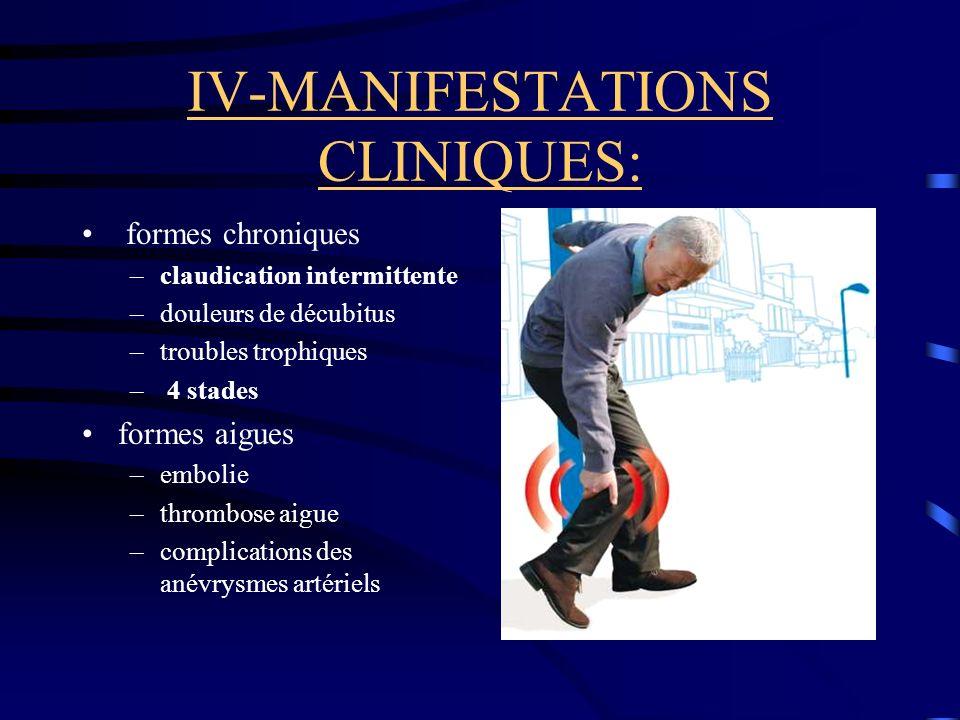 IV-MANIFESTATIONS CLINIQUES: formes chroniques –claudication intermittente –douleurs de décubitus –troubles trophiques – 4 stades formes aigues –embolie –thrombose aigue –complications des anévrysmes artériels