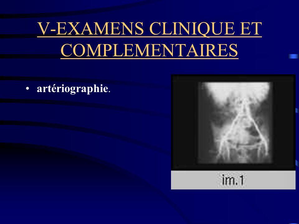 V-EXAMENS CLINIQUE ET COMPLEMENTAIRES artériographie.