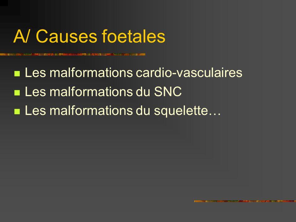 A/ Causes foetales Les malformations cardio-vasculaires Les malformations du SNC Les malformations du squelette…