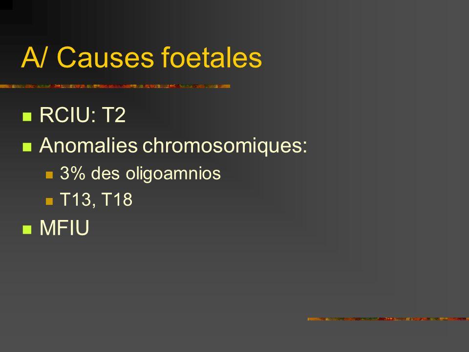 A/ Causes foetales RCIU: T2 Anomalies chromosomiques: 3% des oligoamnios T13, T18 MFIU