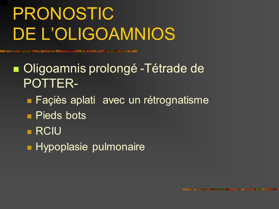 PRONOSTIC DE LOLIGOAMNIOS Oligoamnis prolongé -Tétrade de POTTER- Façiès aplati avec un rétrognatisme Pieds bots RCIU Hypoplasie pulmonaire