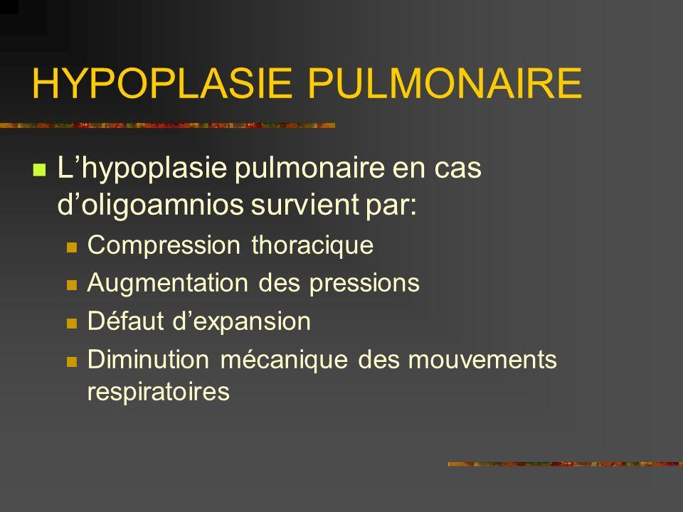 HYPOPLASIE PULMONAIRE Lhypoplasie pulmonaire en cas doligoamnios survient par: Compression thoracique Augmentation des pressions Défaut dexpansion Dim