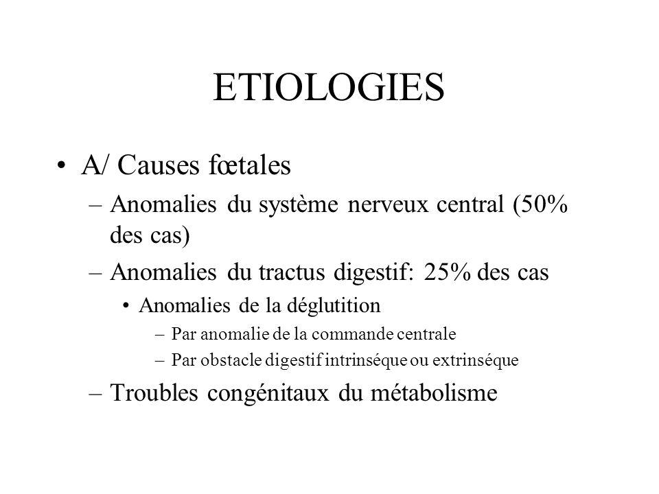 ETIOLOGIES A/ Causes fœtales –Anomalies du système nerveux central (50% des cas) –Anomalies du tractus digestif: 25% des cas Anomalies de la déglutiti