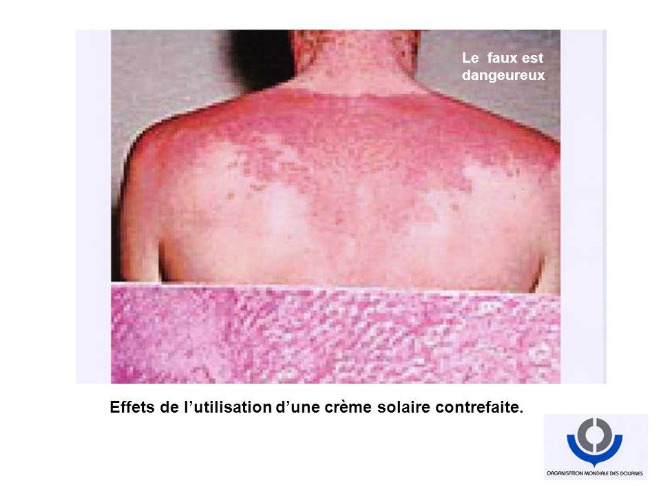 Effets de lutilisation dune crème solaire contrefaite. Industrialisation du faux Tout est faux Le faux est dangeureux