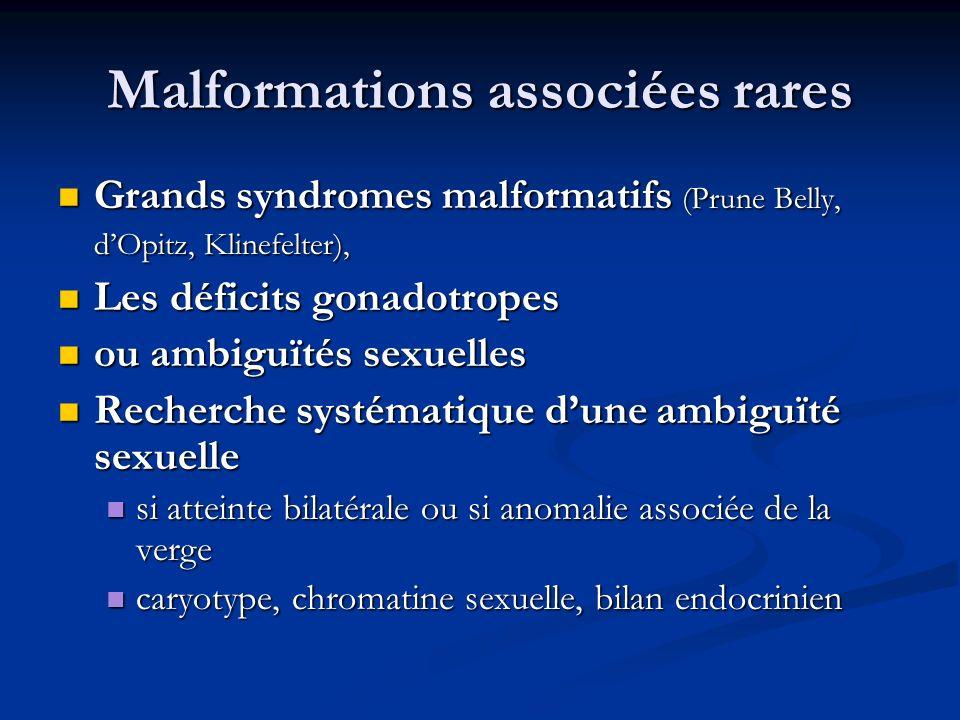 Malformations associées rares Grands syndromes malformatifs (Prune Belly, dOpitz, Klinefelter), Grands syndromes malformatifs (Prune Belly, dOpitz, Kl