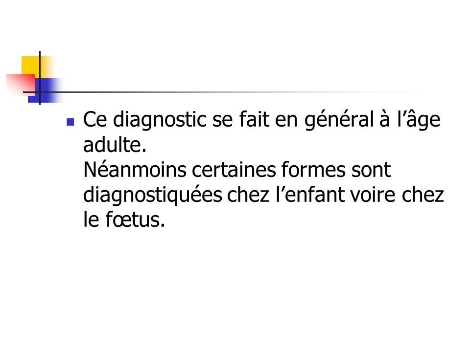 Ce diagnostic se fait en général à lâge adulte. Néanmoins certaines formes sont diagnostiquées chez lenfant voire chez le fœtus.