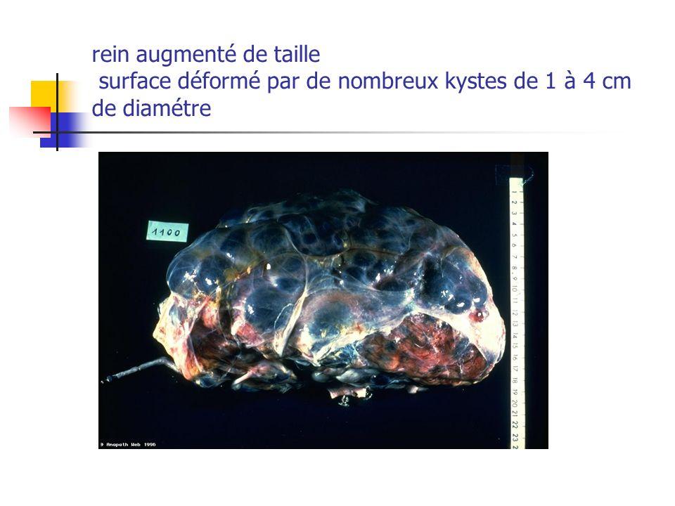 rein augmenté de taille surface déformé par de nombreux kystes de 1 à 4 cm de diamétre