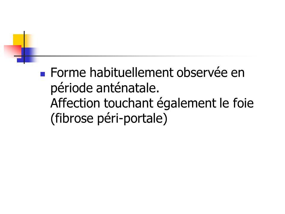 Forme habituellement observée en période anténatale. Affection touchant également le foie (fibrose péri-portale)