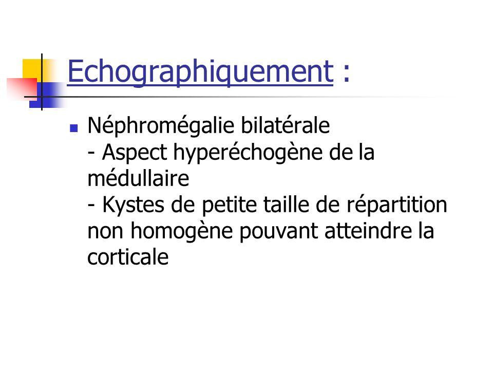 Echographiquement : Néphromégalie bilatérale - Aspect hyperéchogène de la médullaire - Kystes de petite taille de répartition non homogène pouvant att