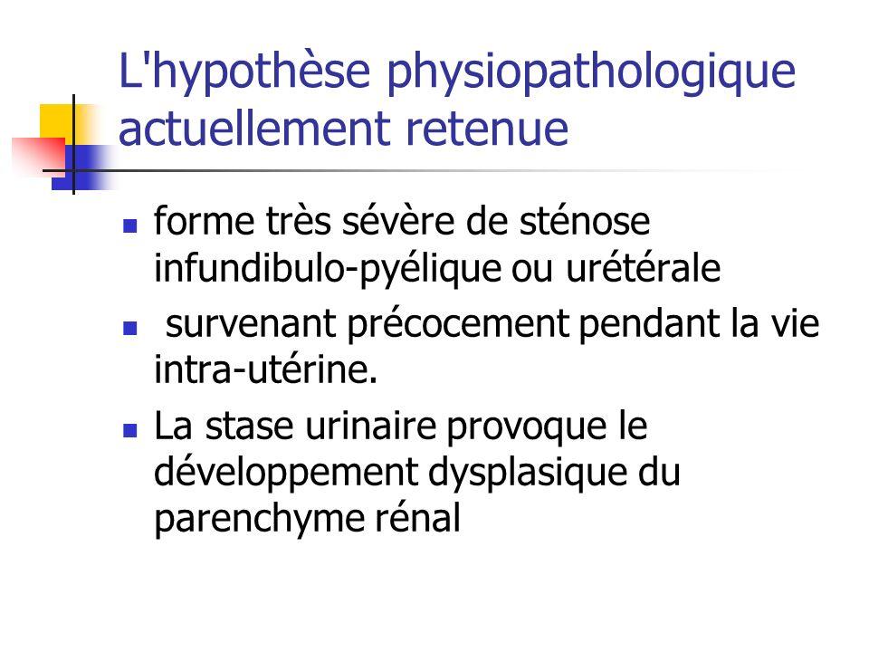 L'hypothèse physiopathologique actuellement retenue forme très sévère de sténose infundibulo-pyélique ou urétérale survenant précocement pendant la vi