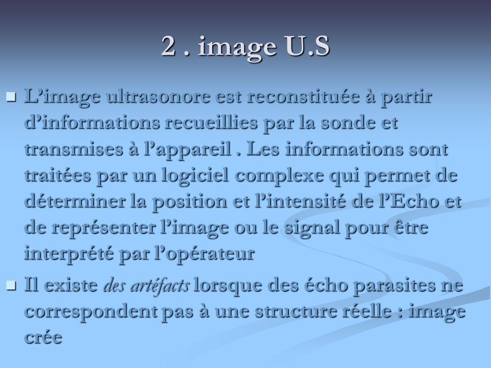 2. image U.S Limage ultrasonore est reconstituée à partir dinformations recueillies par la sonde et transmises à lappareil. Les informations sont trai